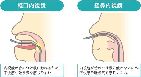 経鼻内視鏡と経口内視鏡との違いについて